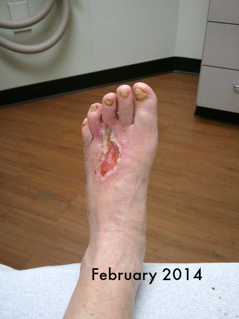 This is how my foot looked in February 2014