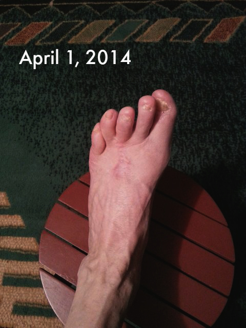 This is how my foot looked in July 2014