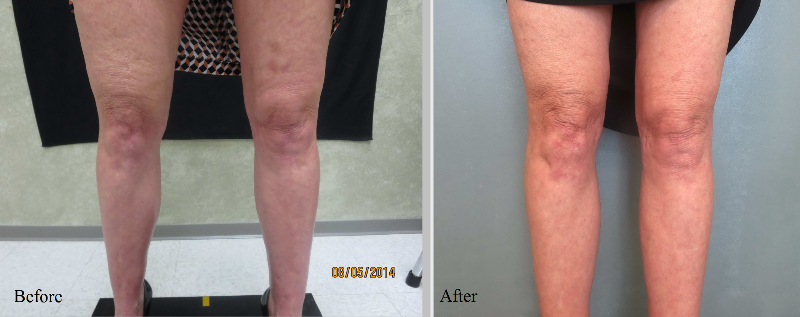 Before and After BodyFX treatment