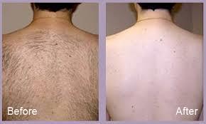 Laser Hair removal back